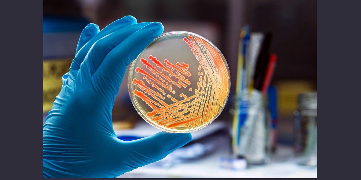 An image of a petri dish containing colonies of bacteria gram negative bacilli/ Gram negative cocco bacilli .